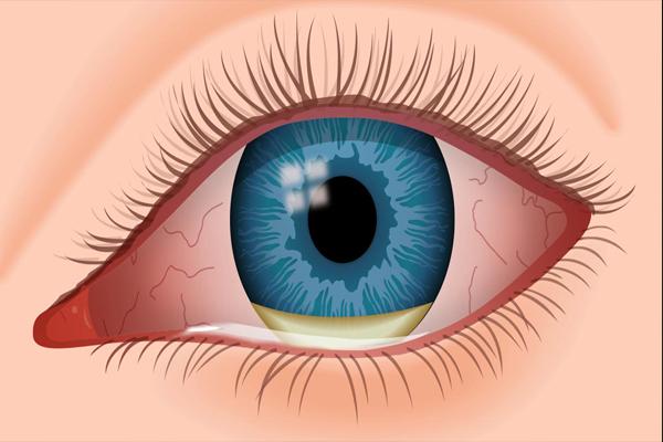 Eye Infection/Irritation