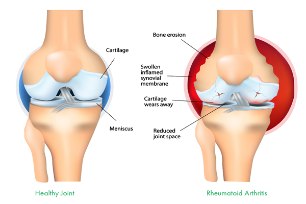 jointpainswelling